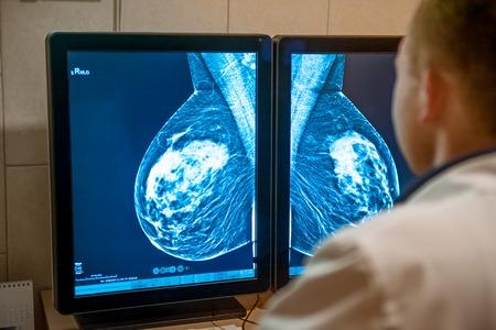 Doktor überprüft Mammogrammschnappschuss der Brust der weiblichen Patientin auf den Monitoren. Tiefenschärfe.