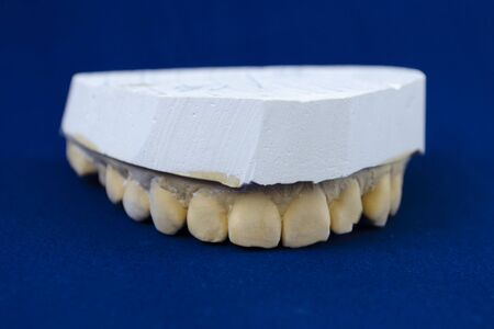 cast of the jaw on a blue background