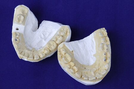 Plaster jaw casts for making a crown with a tooth cut out for work Stock Photo
