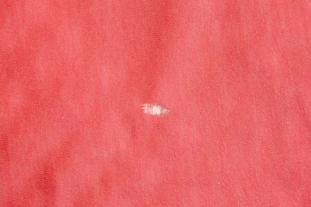 A worn hole in a pink sheet. Poor quality fabrics