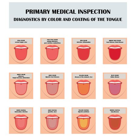 Collection of images of human tongue in different colors and coatings. Infographic symbols for the diagnosis of color and coating of the human tongue. Vector illustration.