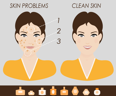 Girl with skin problems and clean skin vector illustration