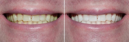 dientes sucios: Blanquear cuidado dental hombre sanos los dientes blancos Foto de archivo