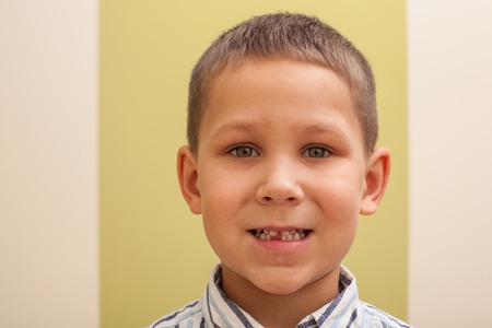 toothless: Portrait of young boy  who lost his milk teeth Stock Photo