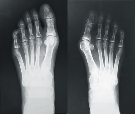 X-ray of the foots with valgus breach bones Stock Photo