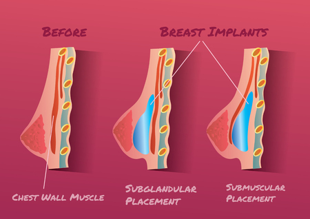 nipple breast: Breast Implant vector illustration infographic before and after