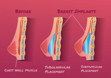 tetas: Implante de mama ilustración vectorial infografía antes y después