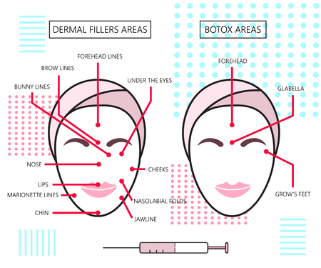 cartel Infograthic sobre rellenos dérmicos y áreas de botox. Las inyecciones. Cosmetología. Belleza. Ilustración. Ilustración de vector