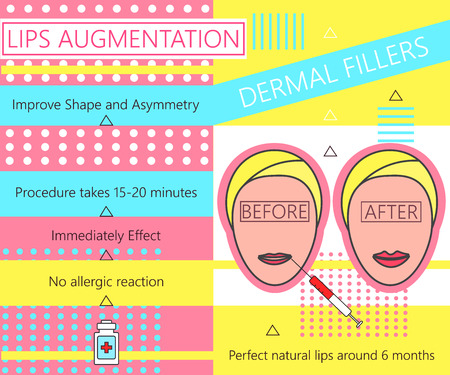 dermal: Infographic about Lips Augmentation. Dermal Fillers. Cosmetology. Beauty. Illustration. Illustration