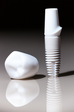 implants: Models of dental, implants, dental dentist objects implants composition