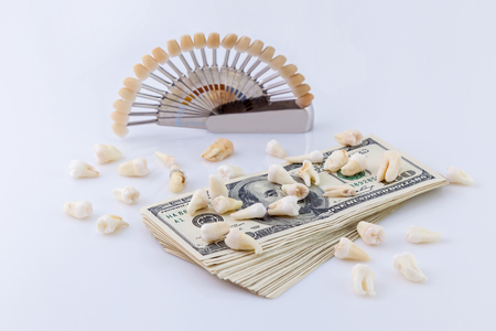 Dental kerascop.Kerascop with ceramic teeth and pack of dollars on the hospitalas table on white background. Stock Photo