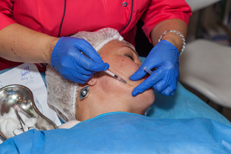 Ukraine Kiev 22 September 2017: lifting of threads. Procedure of face lifting surgery Editorial