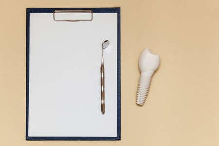 Dental implant and folder with clip for paper sheets A4 on beige background. Dental implant model of artificial tooth. Concept of dentistry and medical items. Photo with place for your text and design.