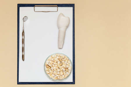 Dental implant, dental mirror, teeth and folder with clip for paper sheets A4 on a beige background. Dental implant model of artificial tooth. Concept of dentistry and medical instruments. Photo with place for your text and design. Foto de archivo