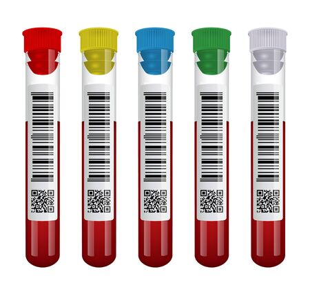 Medical blood test tube set isolated on white