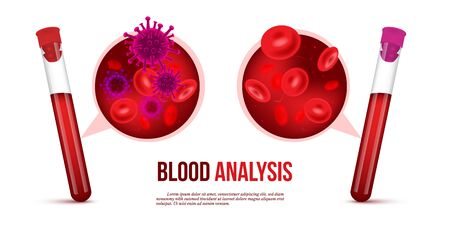 Realistic vector blood analysis medical concept