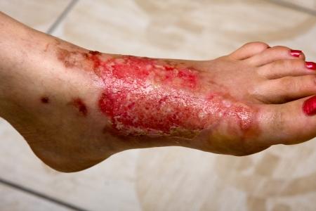 herida: Quemaduras graves en las mujeres