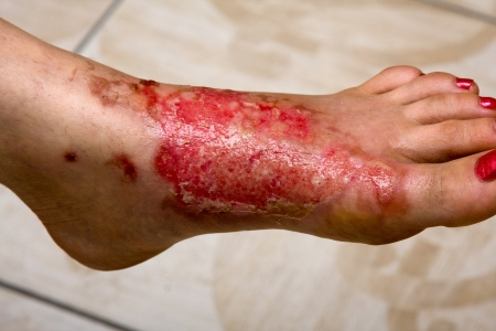 infections: Severe burns in the women
