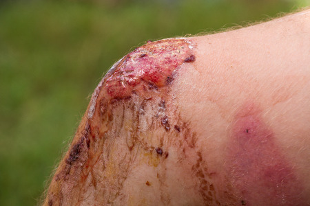accidente transito: Herida en la pierna del hombre, durante un accidente de tr�fico, de cerca Foto de archivo