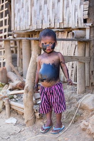 splotchy: MRAUK-U, MYANMAR - JANUARY 26, 2016: Unidentified grimy child standing on the street