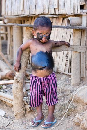 grimy: MRAUK-U, MYANMAR - JANUARY 26, 2016: Unidentified grimy child standing on the street