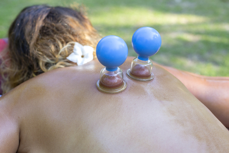 Massage with jars of cellulite on the body of the patient. Treatment of excess weight outdoors in nature. Anti-cellulite massage of the hips with the use of vacuum cans or jars, banks