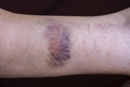 Purple bruise on the skin on a woman hand, close up 写真素材