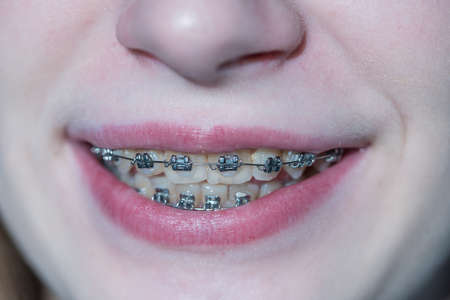 Cute young girl with dental braces. Girl teenager smiling close up