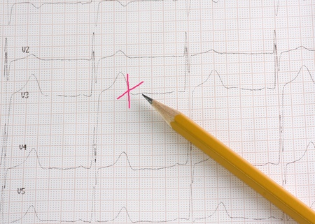pencil and cardiogram photo