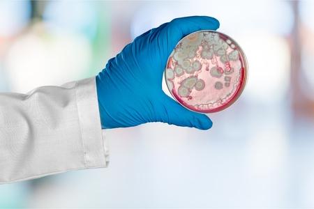 petri: Petri, mold, hand. Stock Photo