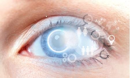 vision: Cataract, eye, vision.