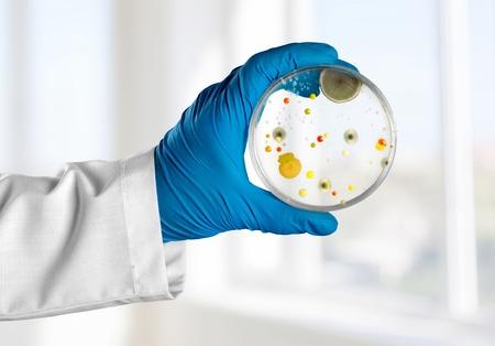 to analyze: Analyze, background, bacteria.