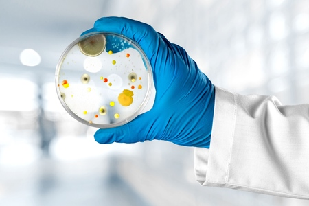 specimen testing: Petri.