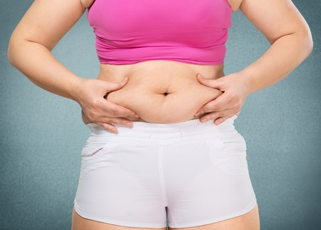 scarring: tummy of a overweight woman