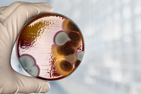 diverticulitis: Petri dish. Stock Photo