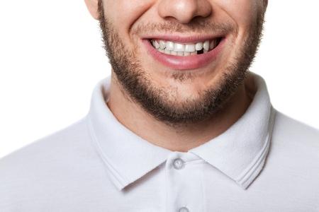 Zub. Reklamní fotografie
