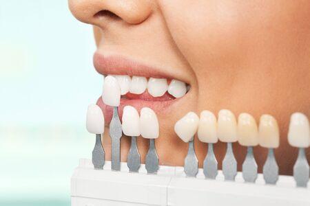 using voice: Dental Hygiene. Stock Photo
