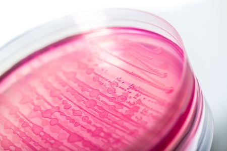 e coli: E. coli. Stock Photo
