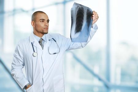 rib cage: X-ray. Stock Photo