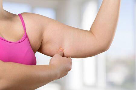 arm: Arm.