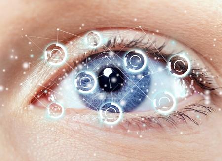 a medical technology: Cataract.