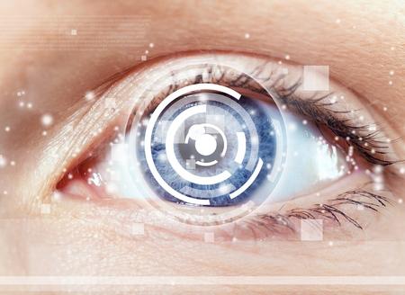 cataract: Cataract.