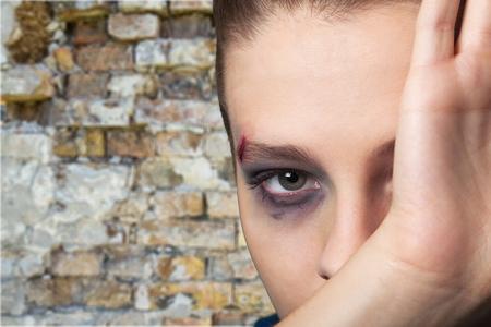 battered woman: Girl.