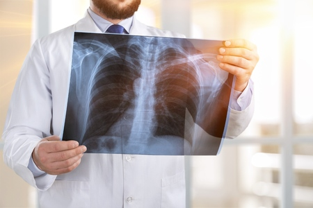 Doctor looking at x-ray.