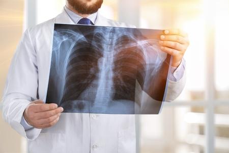 Arts die röntgenstraal bekijkt.