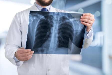 Doctor looking chest x-ray film.
