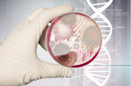 Hand in handschoen met Petri-plaat met bacteriën Enterococcus Faecalis Stockfoto - 90368095