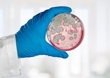 An image of a hand holding a petri dish