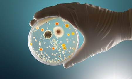 Agar plate full ofmicro bacterias and microorganisms Imagens