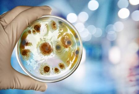 Hand in handschoen met Petri-plaat met bacteriën Enterococcus Faecalis